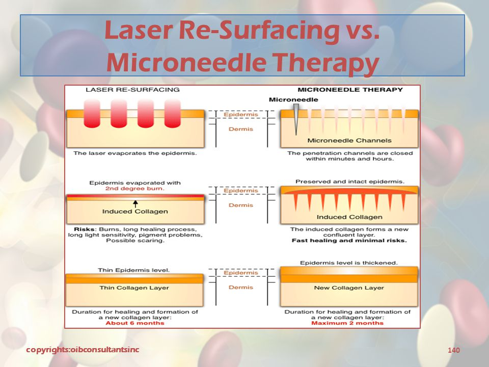 Laser Re-Surfacing vs. Microneedle Therapy