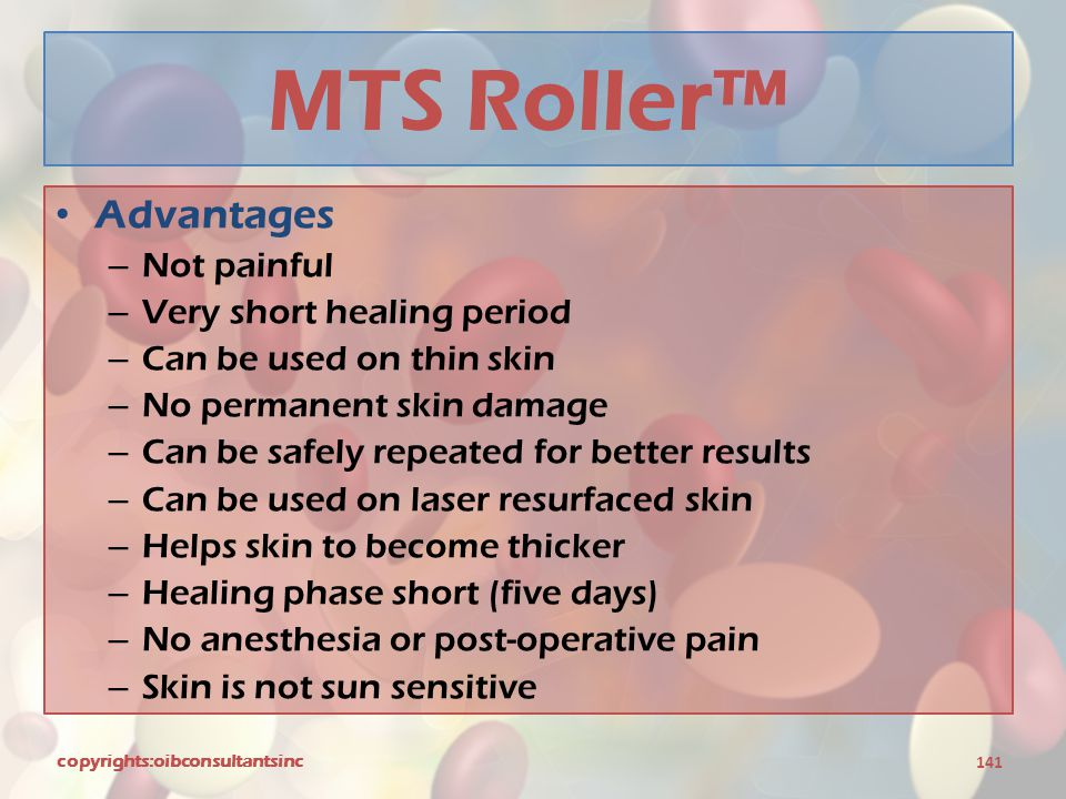 MTS Roller™ Advantages Not painful Very short healing period