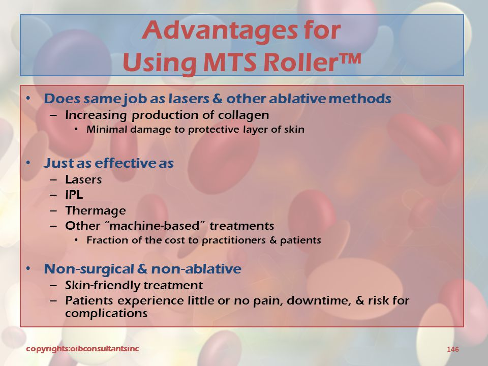 Advantages for Using MTS Roller™