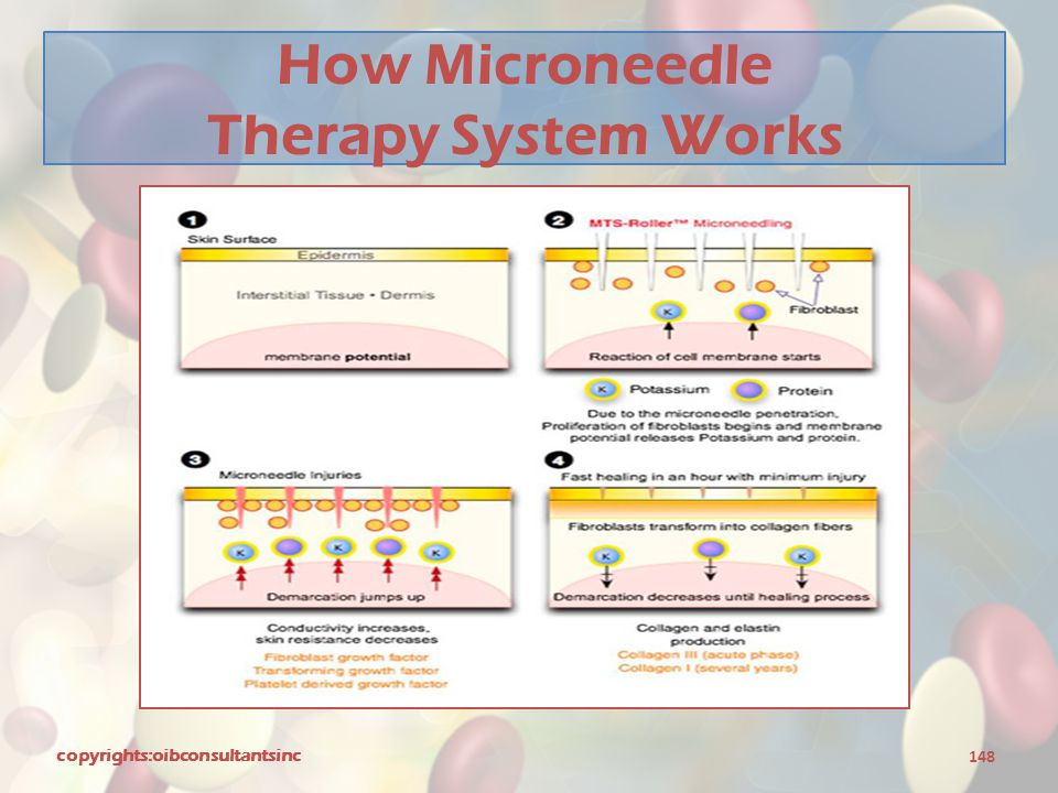 How Microneedle Therapy System Works