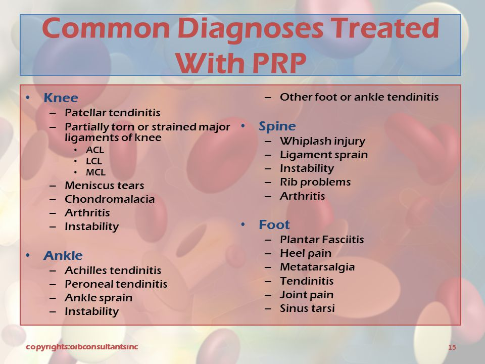 Common Diagnoses Treated With PRP