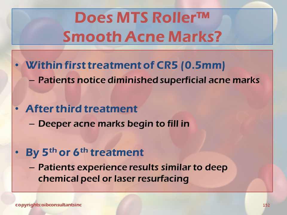 Does MTS Roller™ Smooth Acne Marks