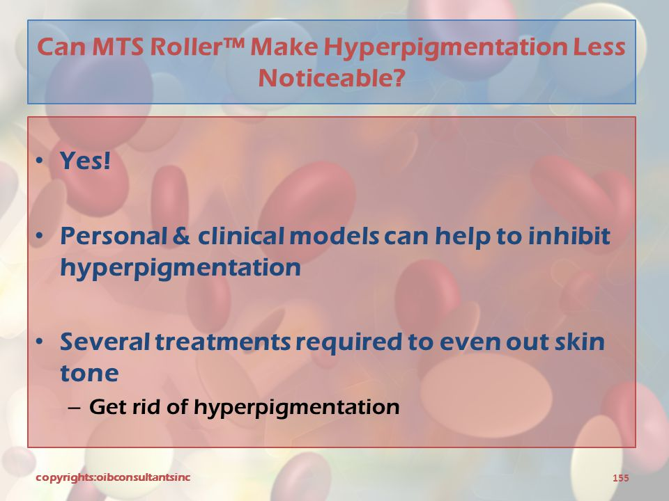 Can MTS Roller™ Make Hyperpigmentation Less Noticeable