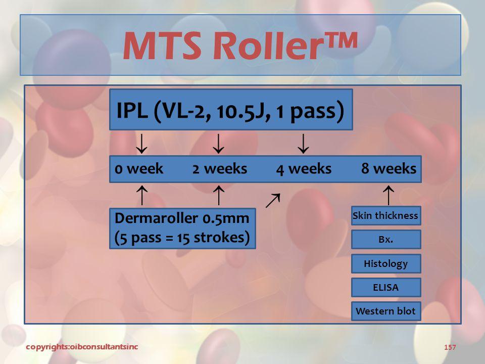 MTS Roller™ IPL (VL-2, 10.5J, 1 pass)       