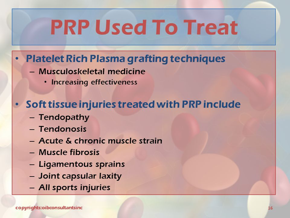 PRP Used To Treat Platelet Rich Plasma grafting techniques