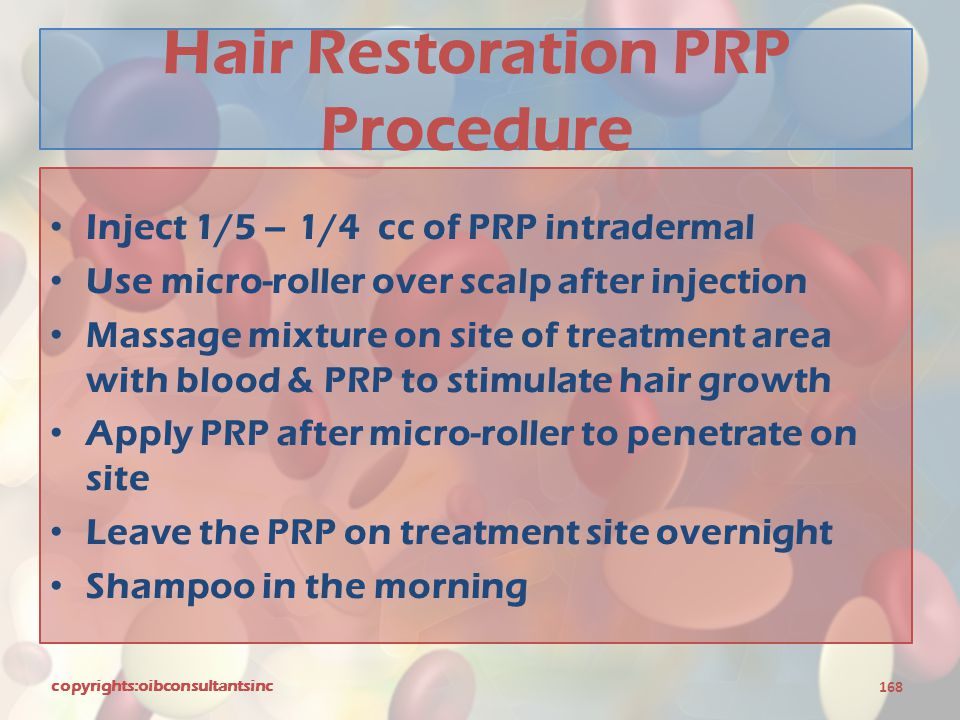 Hair Restoration PRP Procedure