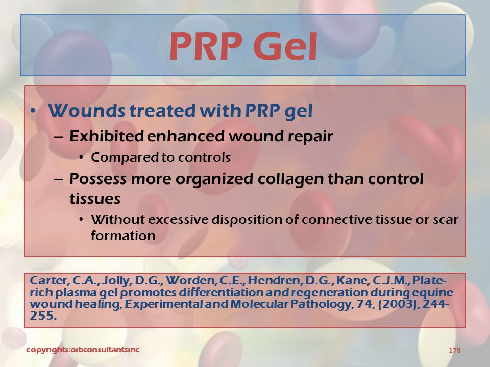 PRP Gel Wounds treated with PRP gel Exhibited enhanced wound repair