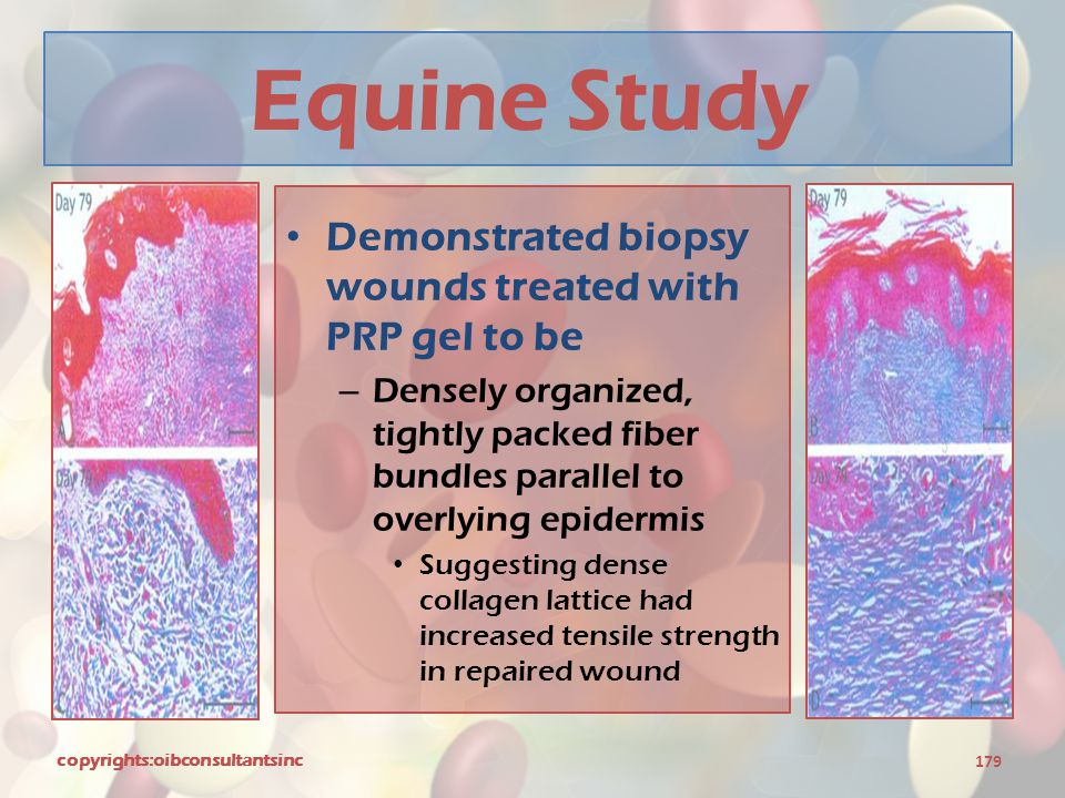 Equine Study Demonstrated biopsy wounds treated with PRP gel to be