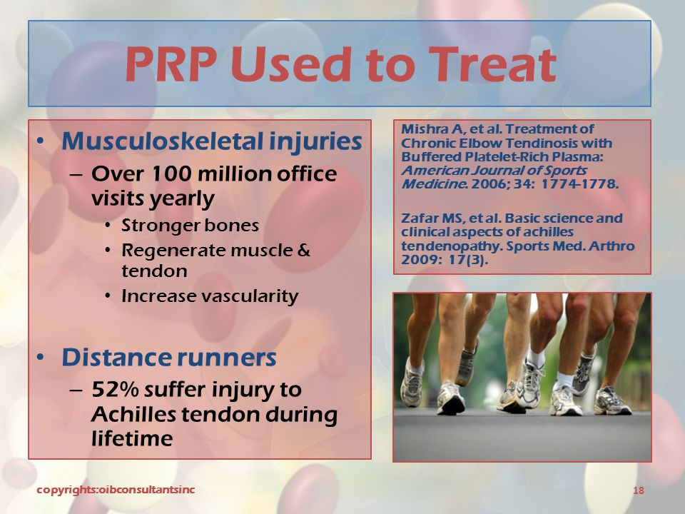 PRP Used to Treat Musculoskeletal injuries Distance runners