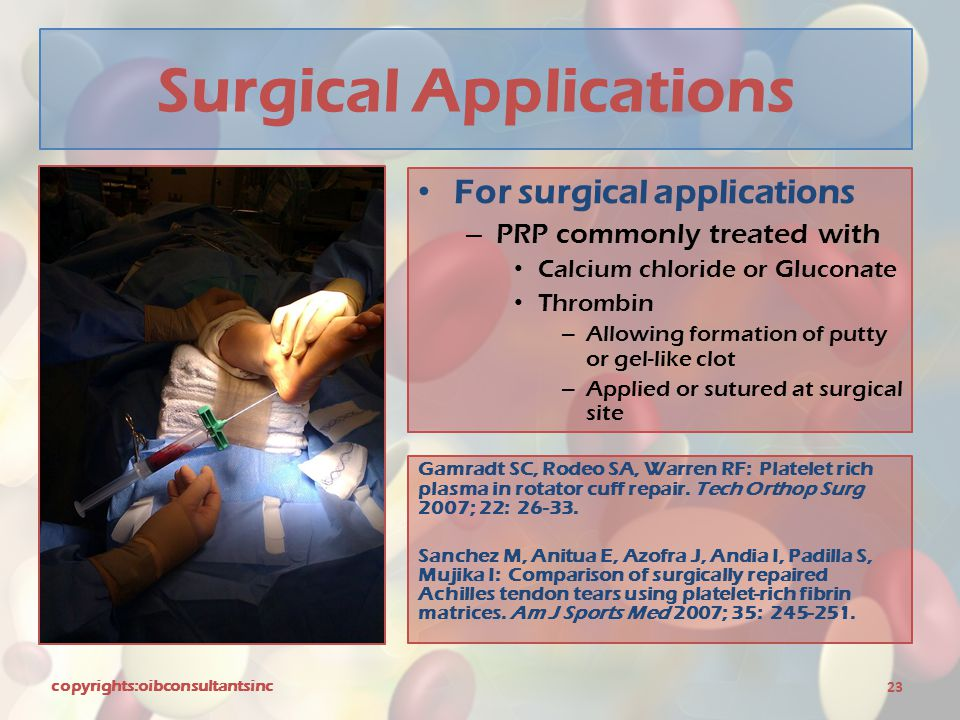 Surgical Applications