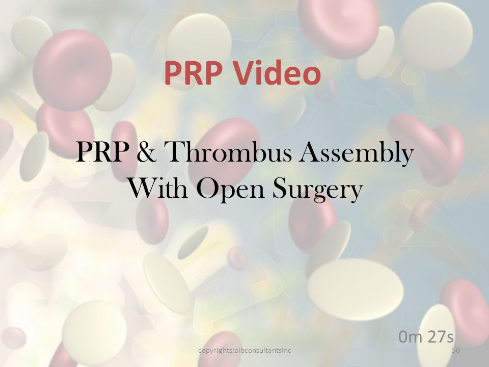 PRP & Thrombus Assembly With Open Surgery