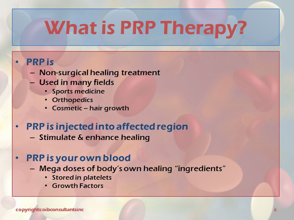 What is PRP Therapy PRP is PRP is injected into affected region