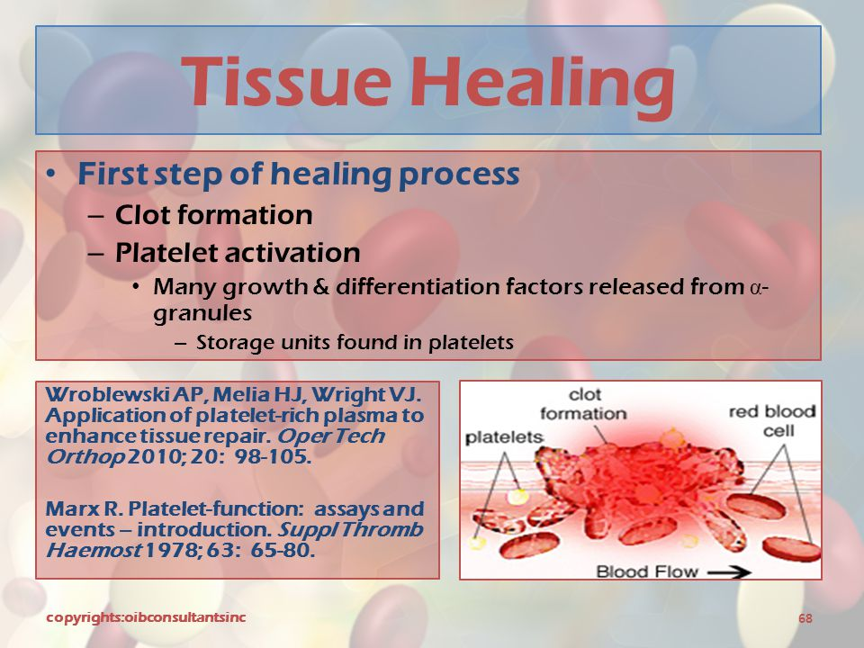Tissue Healing First step of healing process Clot formation