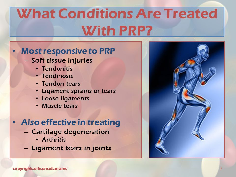 What Conditions Are Treated With PRP