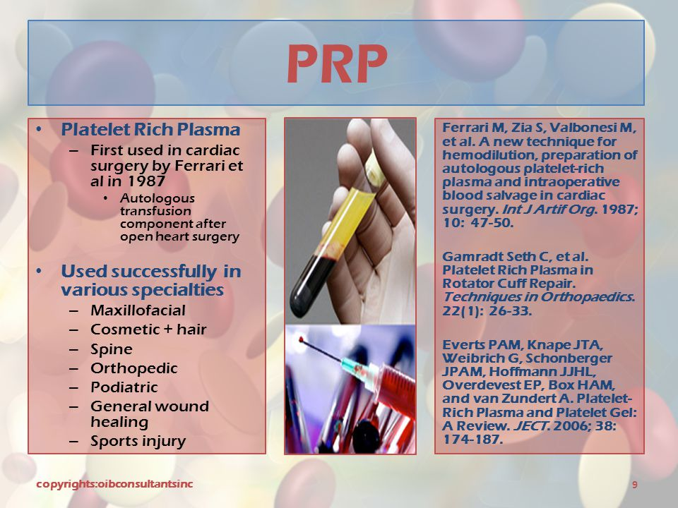 PRP Platelet Rich Plasma Used successfully in various specialties