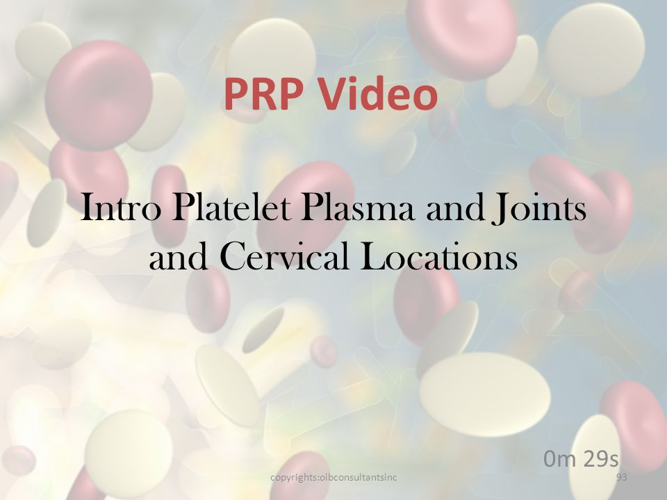 Intro Platelet Plasma and Joints and Cervical Locations
