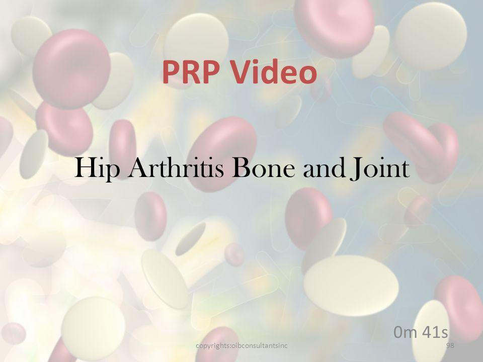 Hip Arthritis Bone and Joint