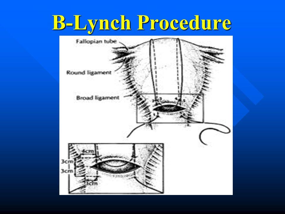 B-Lynch Procedure