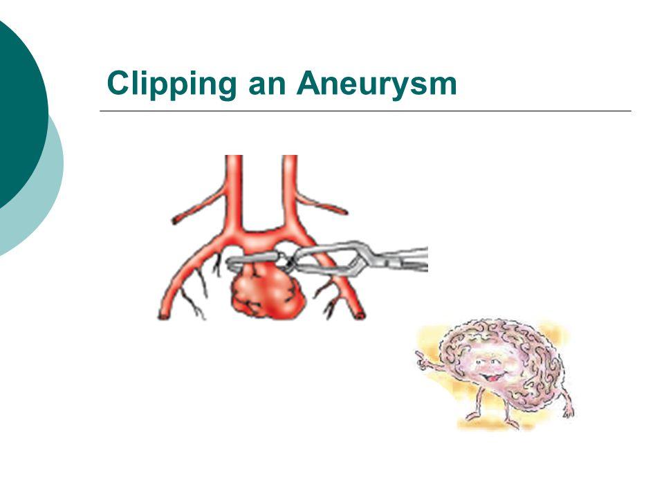 Clipping an Aneurysm