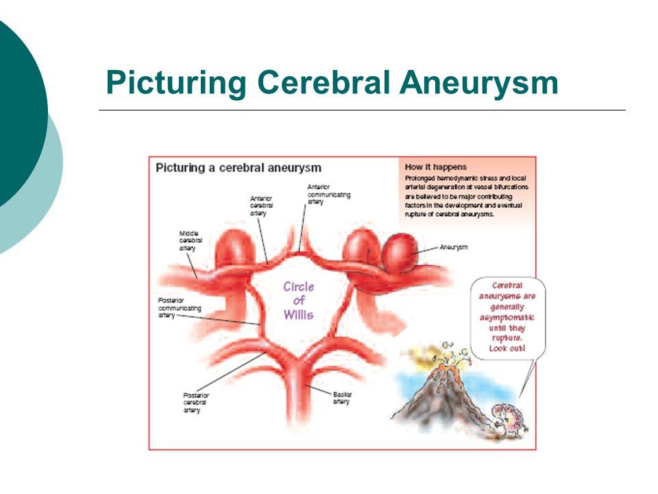 Picturing Cerebral Aneurysm