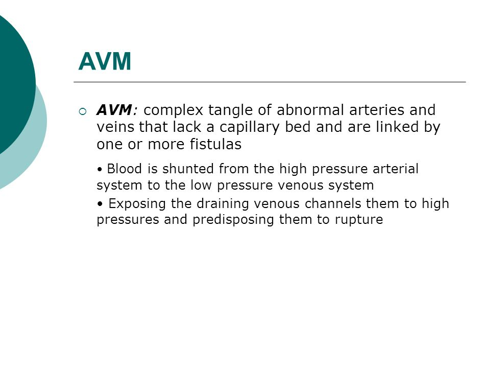 AVM AVM: complex tangle of abnormal arteries and veins that lack a capillary bed and are linked by one or more fistulas.