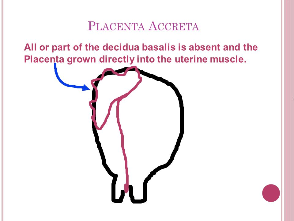 Placenta Accreta All or part of the decidua basalis is absent and the