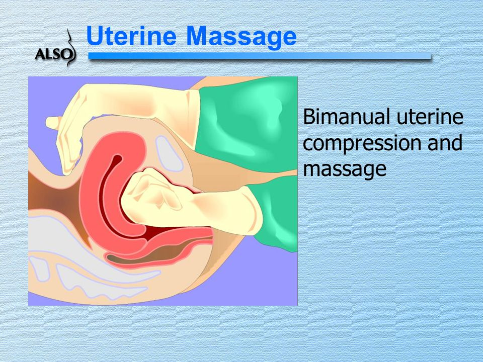 Uterine Massage Bimanual uterine compression and massage