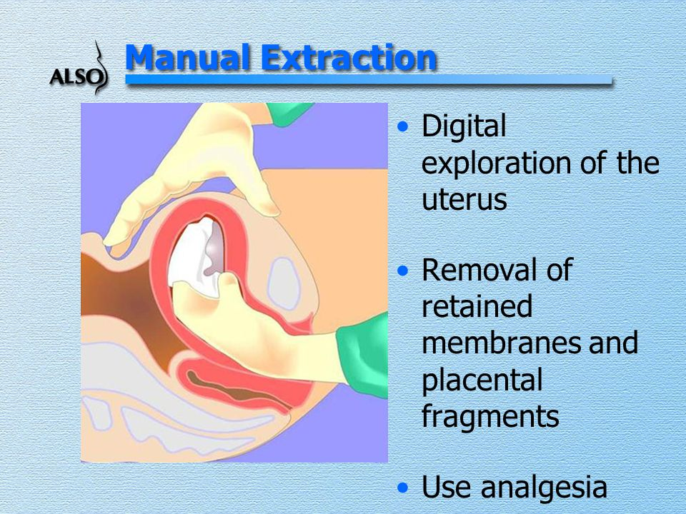 Manual Extraction Digital exploration of the uterus