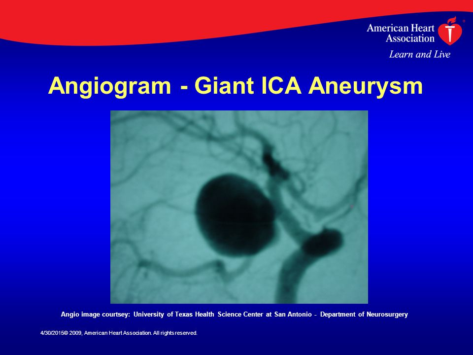 Angiogram - Giant ICA Aneurysm