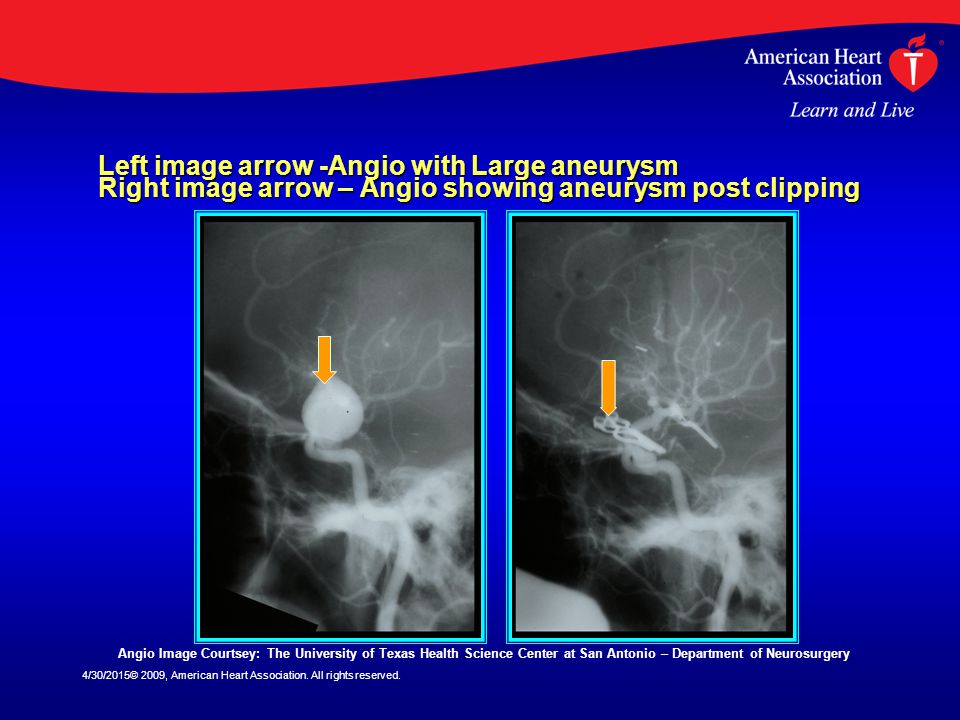 Left image arrow -Angio with Large aneurysm Right image arrow – Angio showing aneurysm post clipping