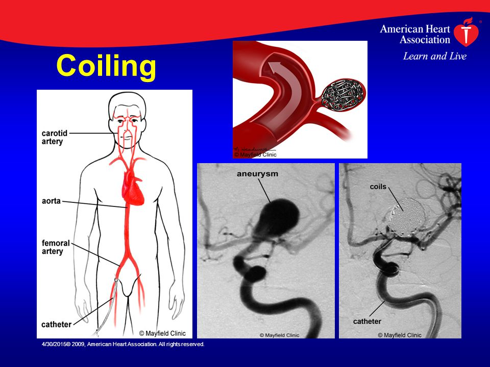 Coiling 4/13/2017© 2009, American Heart Association. All rights reserved.