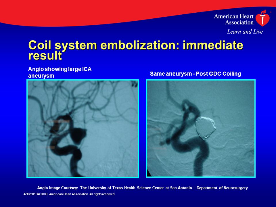Coil system embolization: immediate result
