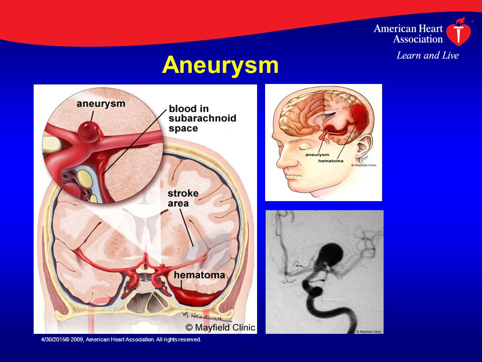 Aneurysm 4/13/2017© 2009, American Heart Association. All rights reserved.