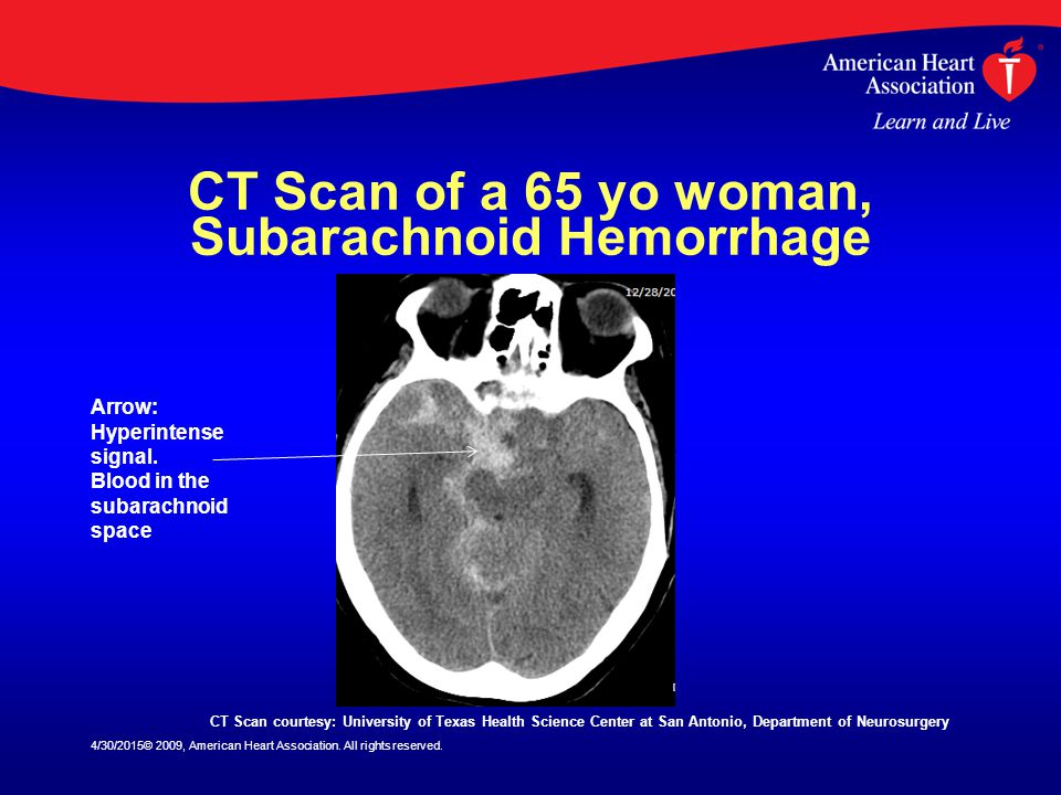 CT Scan of a 65 yo woman, Subarachnoid Hemorrhage