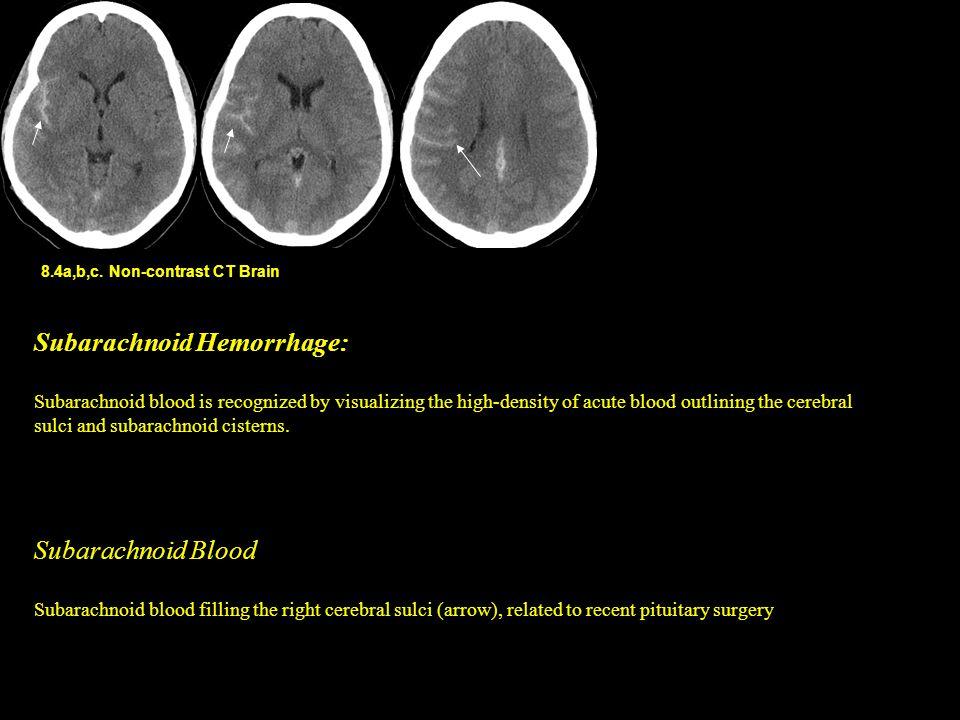 8.4a,b,c. Non-contrast CT Brain