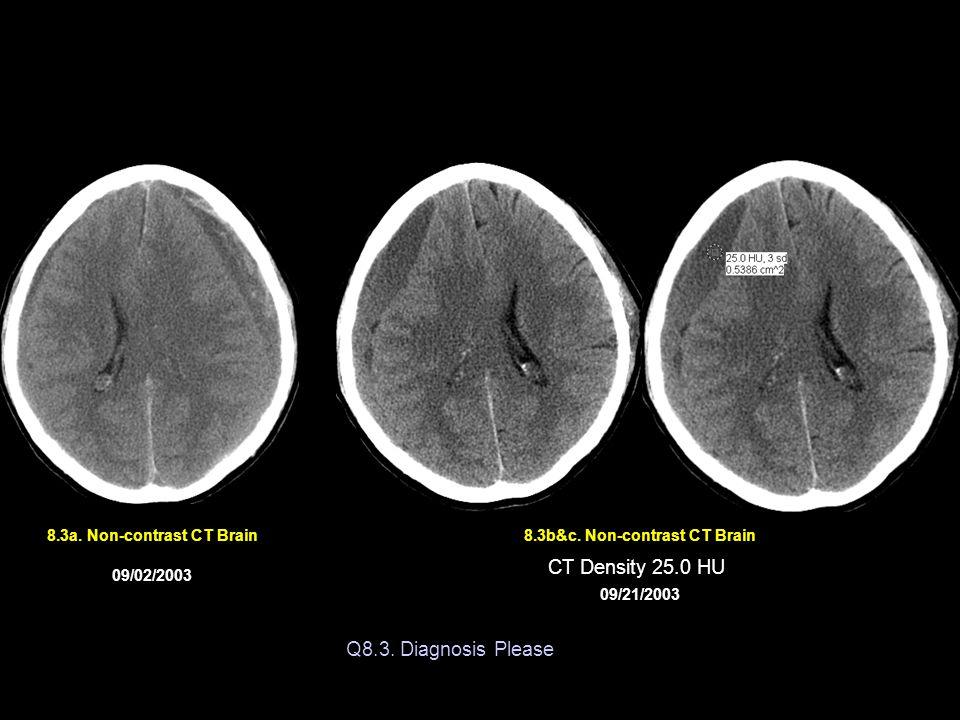 8.3a. Non-contrast CT Brain 8.3b&c. Non-contrast CT Brain
