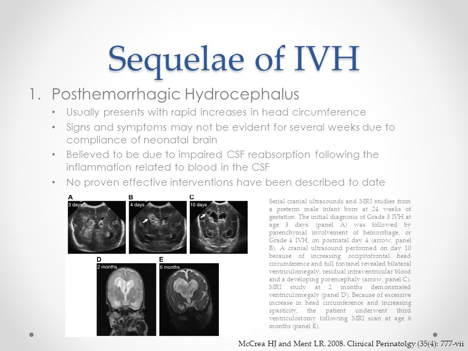 Sequelae of IVH Posthemorrhagic Hydrocephalus