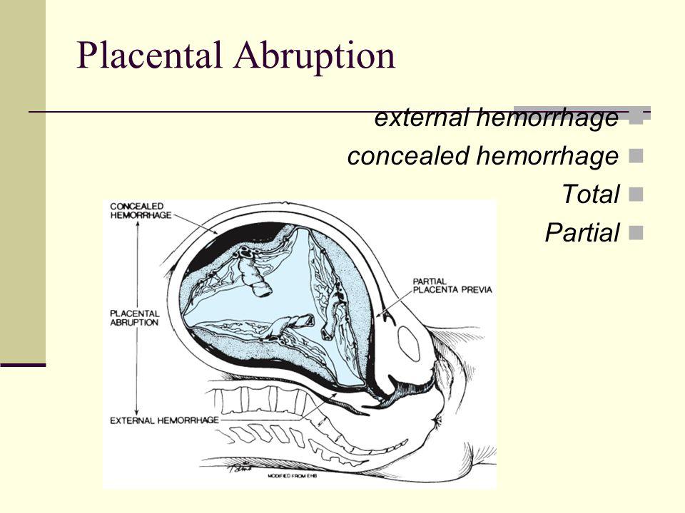 Placental Abruption external hemorrhage concealed hemorrhage Total
