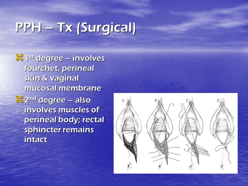 PPH – Tx (Surgical) 1st degree – involves fourchet, perineal skin & vaginal mucosal membrane.