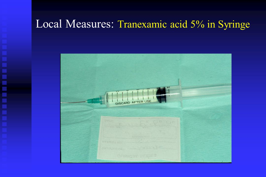 Local Measures: Tranexamic acid 5% in Syringe