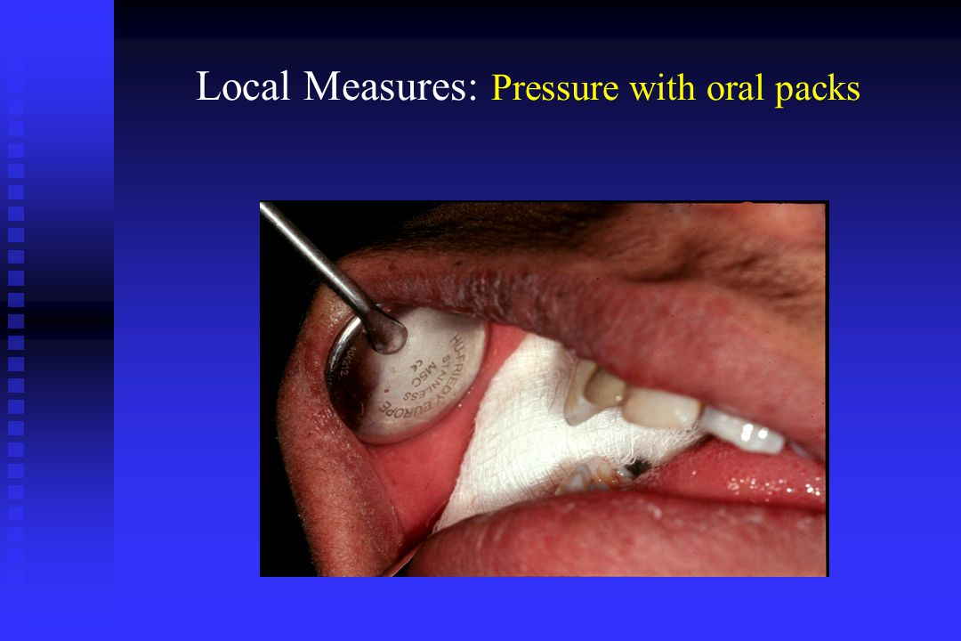Local Measures: Pressure with oral packs