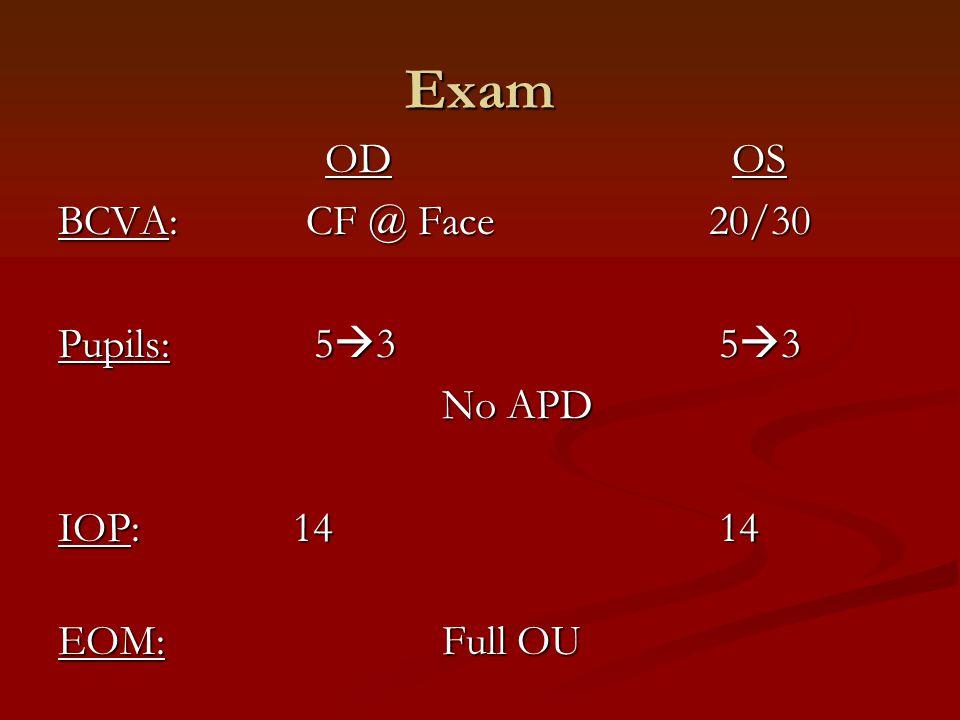 Exam OD OS BCVA: CF @ Face 20/30 Pupils: 53 53 No APD IOP: 14 14
