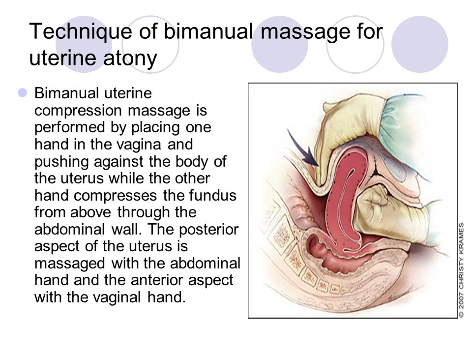 Technique of bimanual massage for uterine atony
