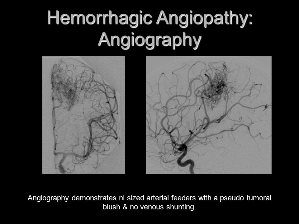 Hemorrhagic Angiopathy: Angiography