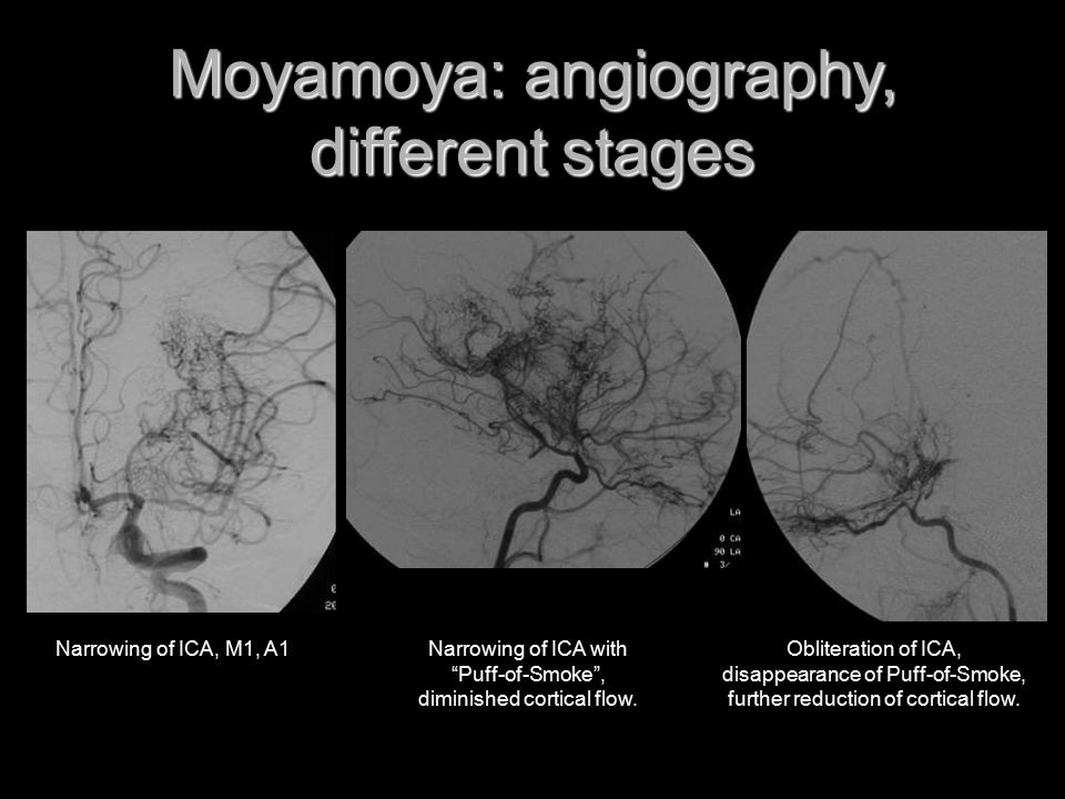 Moyamoya: angiography, different stages