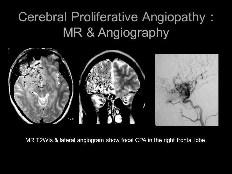 Cerebral Proliferative Angiopathy : MR & Angiography
