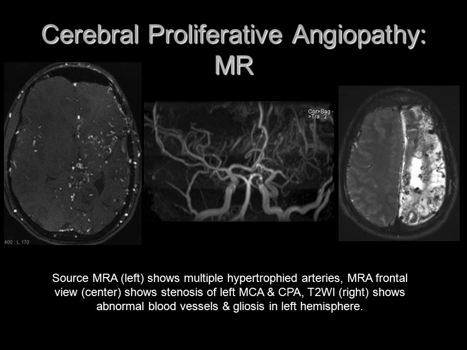 Cerebral Proliferative Angiopathy: MR