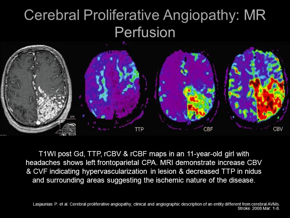 Cerebral Proliferative Angiopathy: MR Perfusion