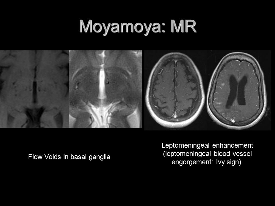 Moyamoya: MR Leptomeningeal enhancement (leptomeningeal blood vessel engorgement: Ivy sign).