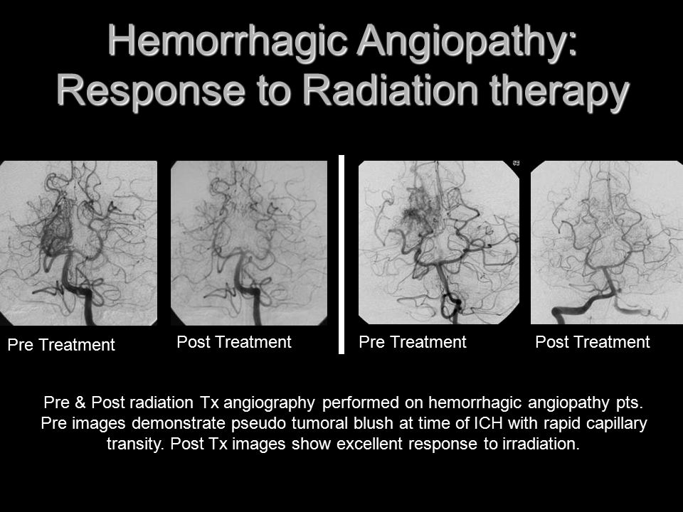 Hemorrhagic Angiopathy: Response to Radiation therapy